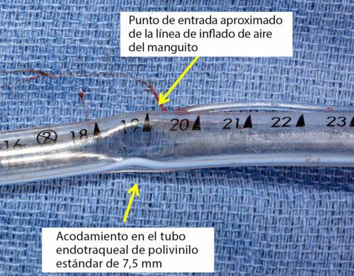 Evaluación broncoscópica que demuestra la obstrucción supraglótica del tubo endotraqueal de polivinilo cerca de la marca de 19centímetros.